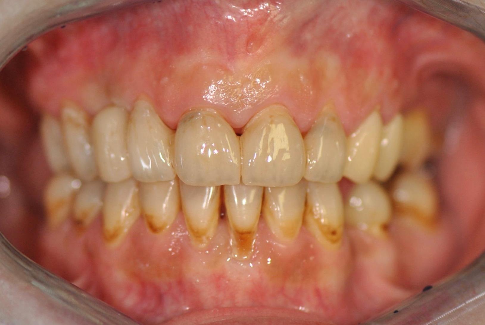 grafen-zubni-nahrada