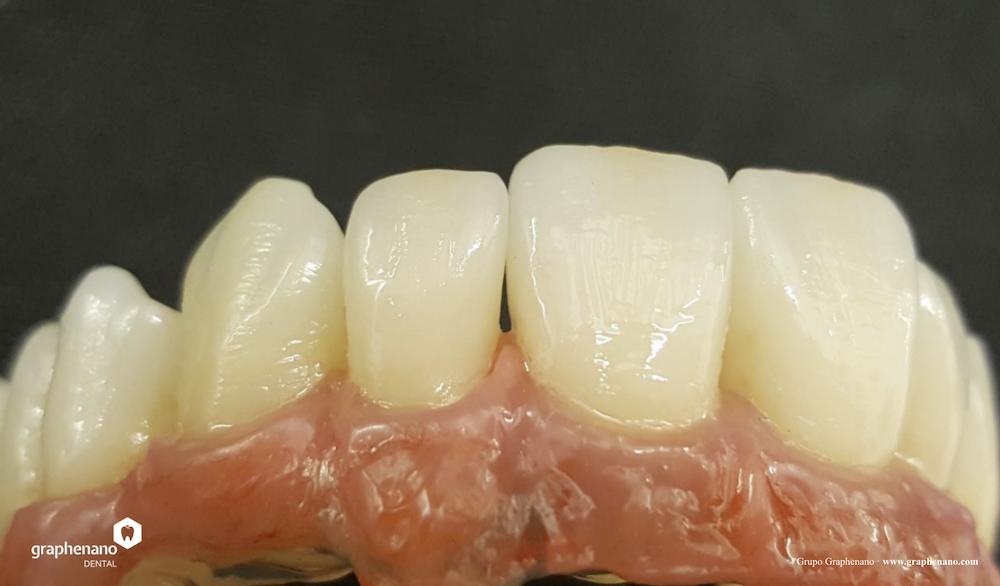 zubni-nahrada-grafen