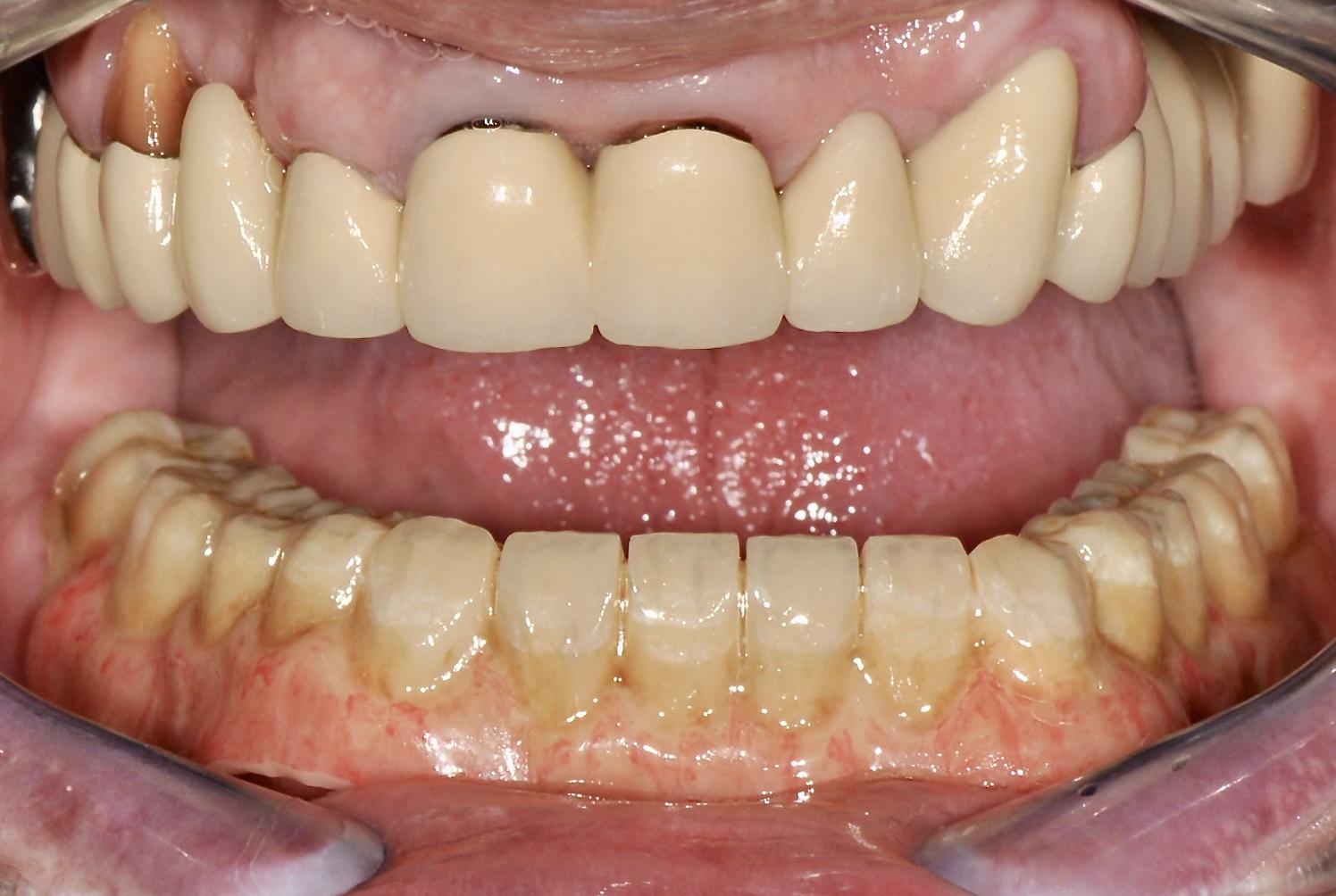 pmma-teleskopicka-zubni-nahrada-v-ustech