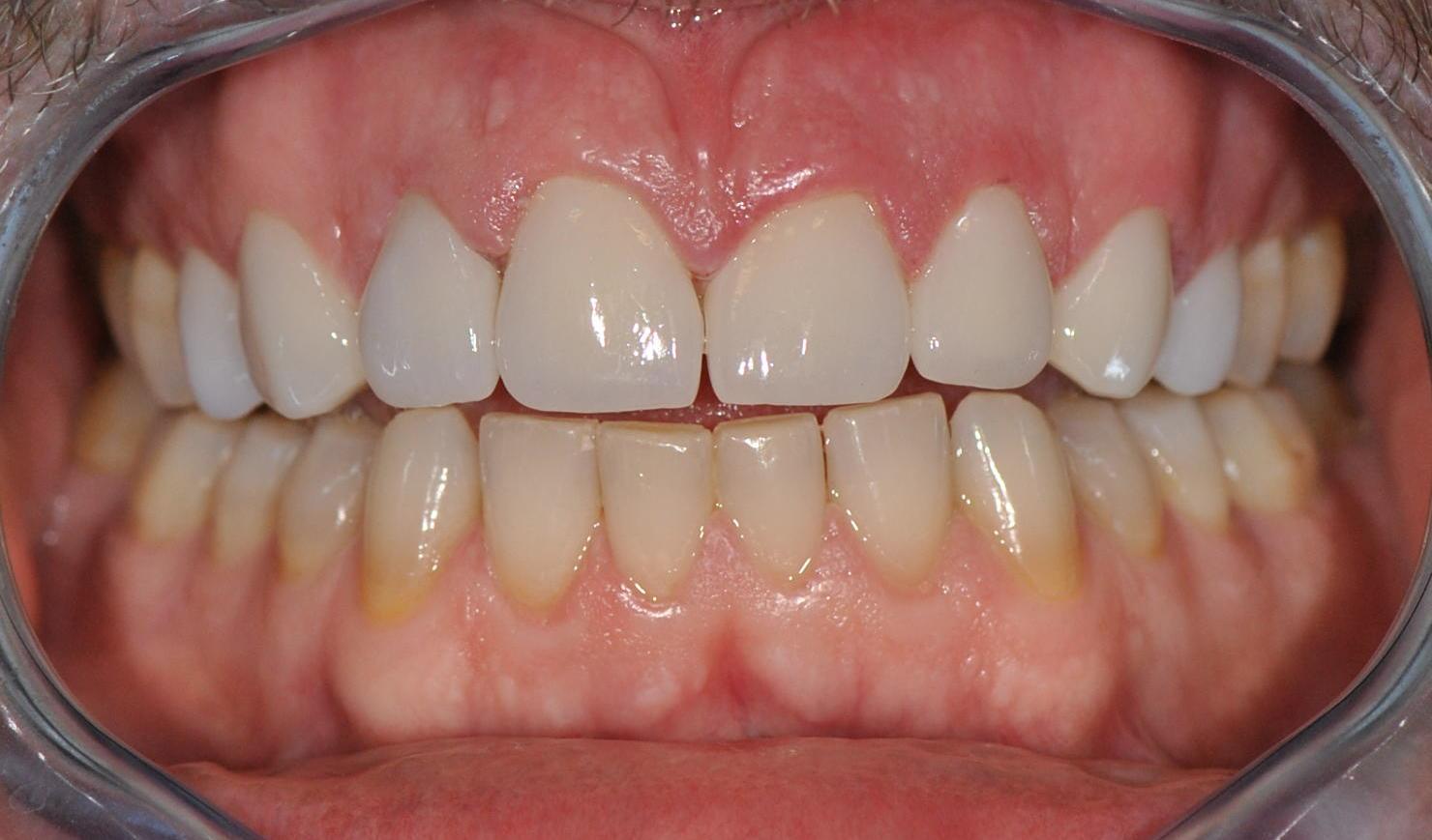 nove-zuby-jslab