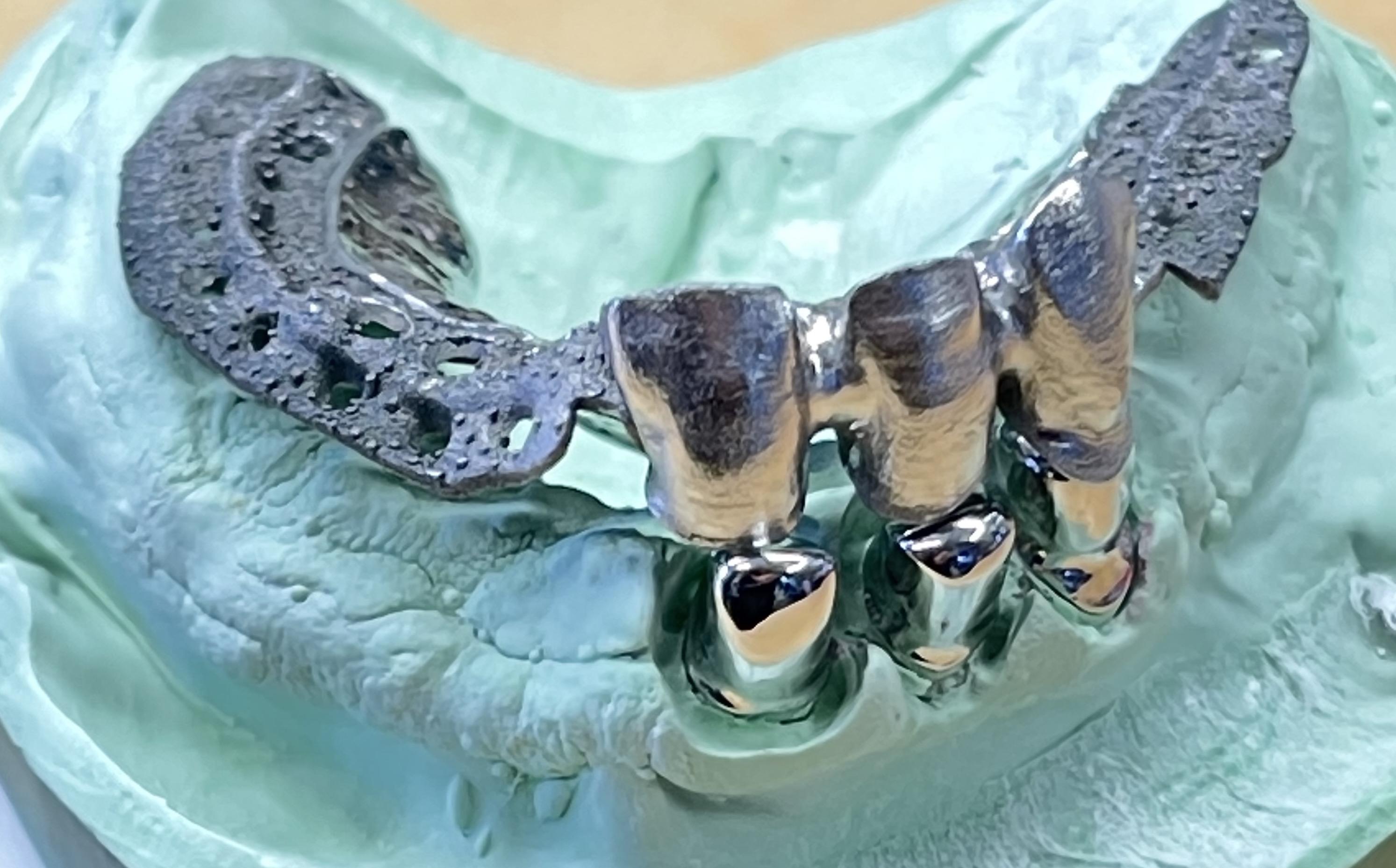 Teleskopické zubní náhrady - jslab