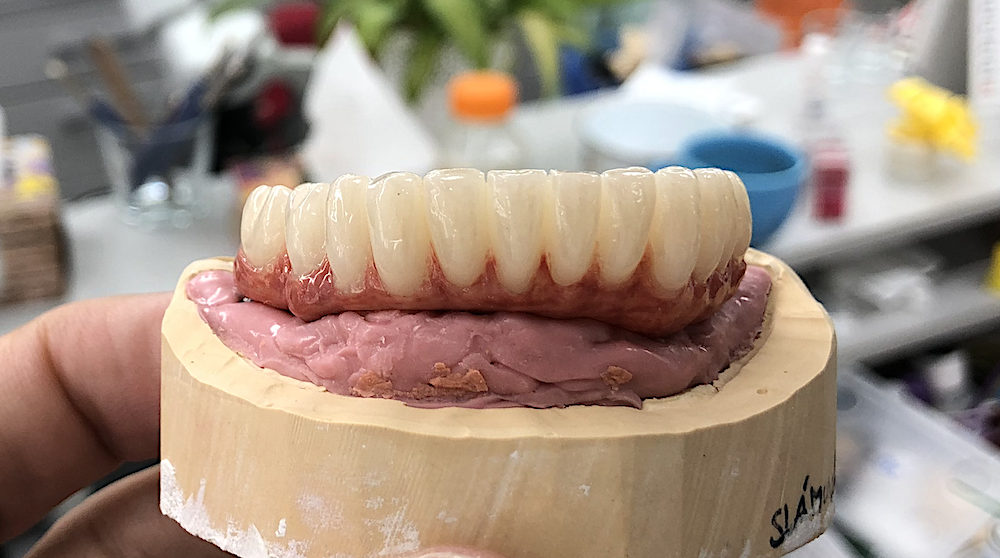 Branemark-peek-gingiva