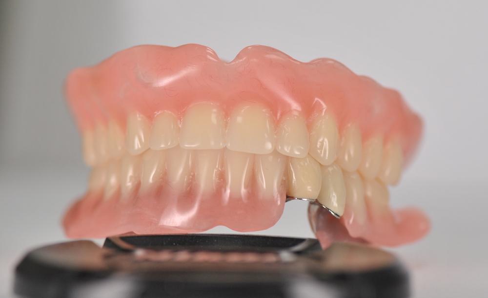 teleskopicka-zubni-nahrada-jslab