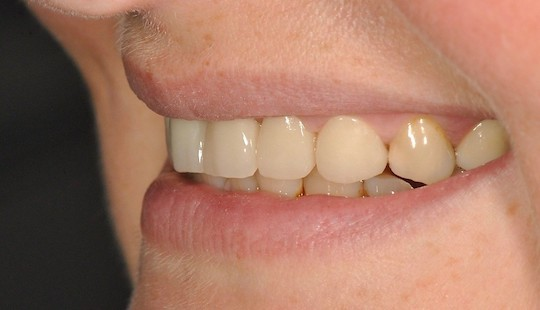 pmma-jslab-zubni-laborator