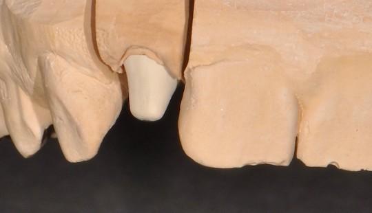 Korenova-nastavba-jslab-zubni-laborator
