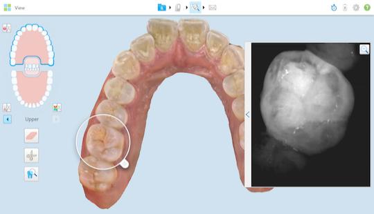 itero-zubni-laborator